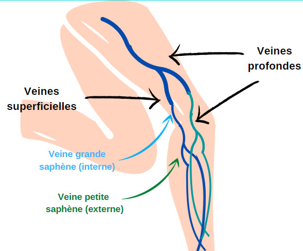 Maladie veineuse - chirurgie